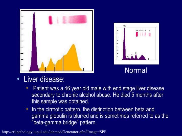 Liver disease: