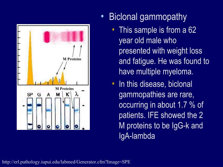 Biclonal gammopathy
