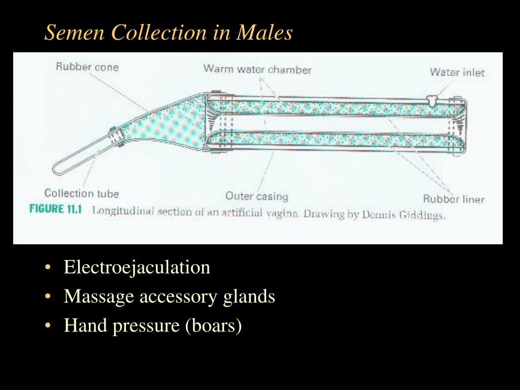Semen Collection in Males