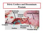 pelvic urethra and disseminate prostate
