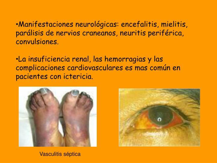 Manifestaciones neurológicas: encefalitis, mielitis, parálisis de nervios craneanos, neuritis periférica, convulsiones.