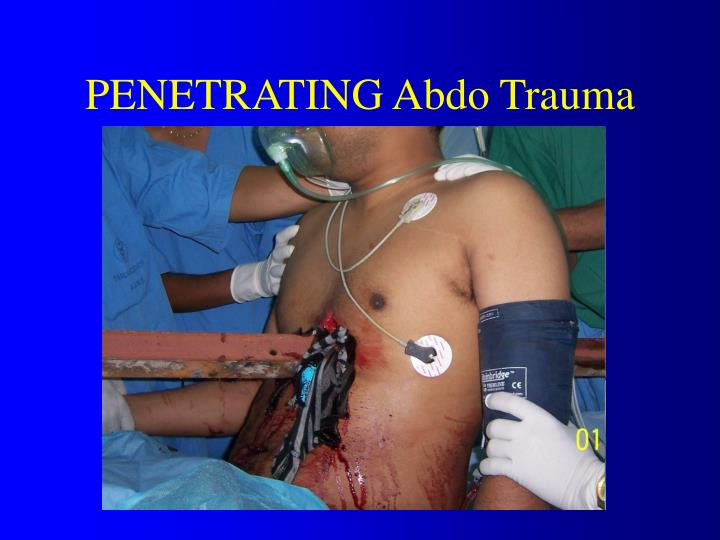 PENETRATING Abdo Trauma