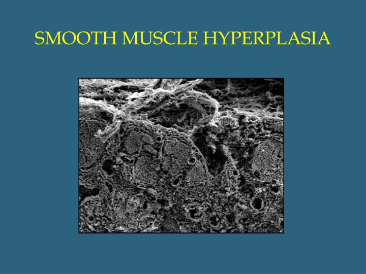 SMOOTH MUSCLE HYPERPLASIA