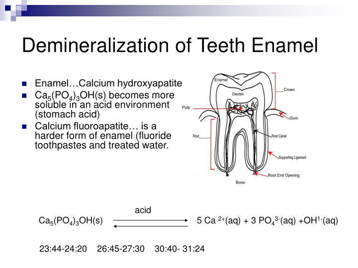 Demineralization of Teeth Enamel