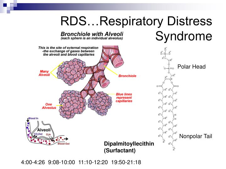 RDS…Respiratory Distress Syndrome