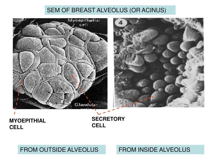 SEM OF BREAST ALVEOLUS (OR ACINUS)
