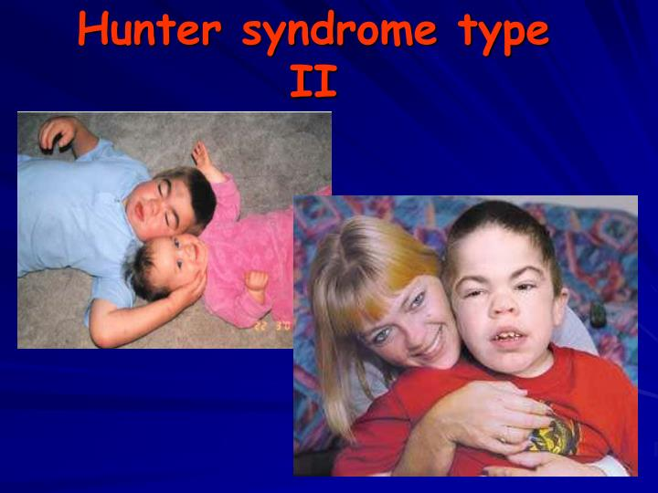 hunter syndrome Hunter syndrome hunter syndrome, also known as mucopolysaccharidosis ii (mps ii) is a rare x-linked genetic disorder that primarily affects males.