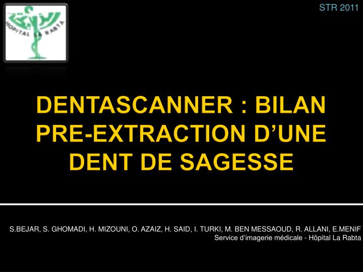 dentascanner bilan pre extraction d une dent de sagesse n.