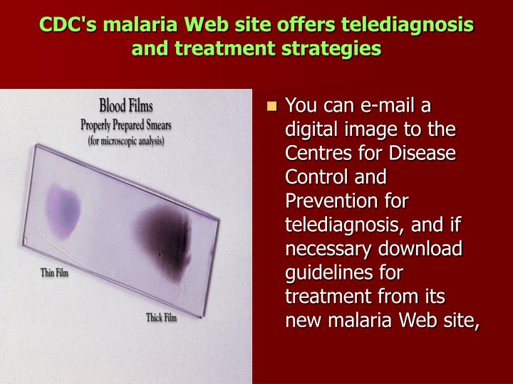 CDC's malaria Web site offers telediagnosis and treatment strategies