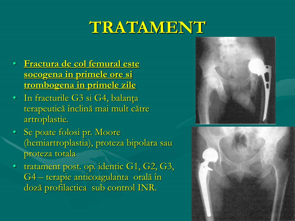 Coxartroza - cauze si tratament artroza soldului | bekkolektiv.com