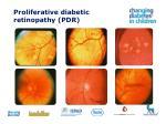 proliferative diabetic retinopathy pdr