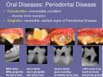 oral diseases periodontal disease2