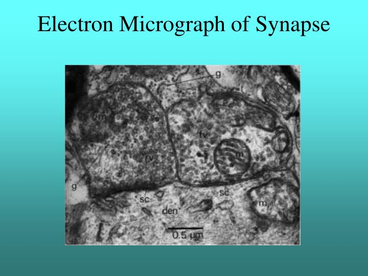 electron micrograph of synapse n.
