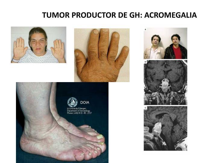 TUMOR PRODUCTOR DE GH: ACROMEGALIA