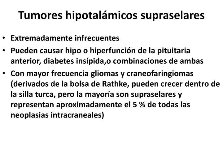 Tumores hipotalámicos