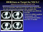 her2 neu as target for nsclc kelly r j et al jco 2010 28 e507 e510