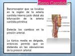 seno carotideo