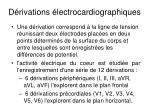 d rivations lectrocardiographiques