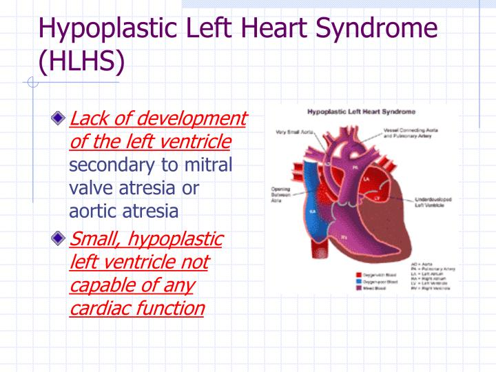 Hypoplastic Left Heart Syndrome (HLHS)