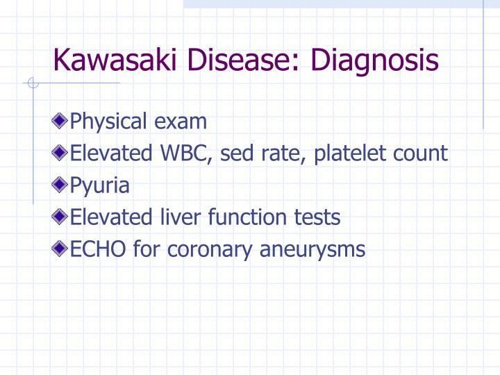 Kawasaki Disease: Diagnosis