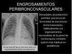 engrosamientos peribroncovasculares