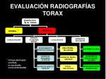 evaluaci n radiograf as torax