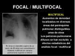 focal multifocal1