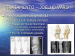 tratamento joelho varo10