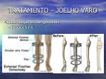 tratamento joelho varo12