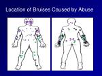 location of bruises caused by abuse
