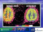 smaller less active less developed brain regions found on scans