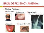 iron deficiency anemia6