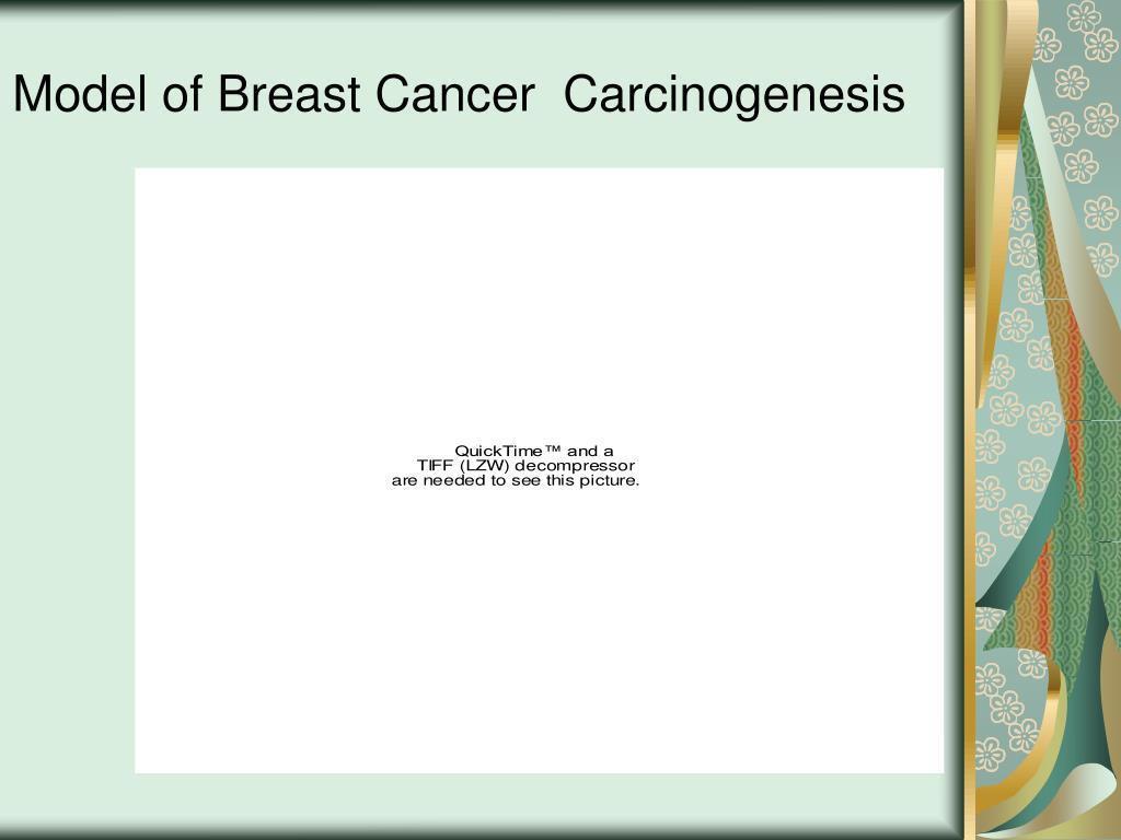 Model of Breast Cancer  Carcinogenesis