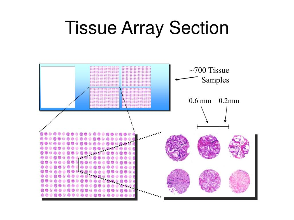 Tissue Array Section