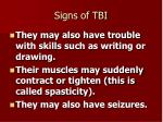 signs of tbi2