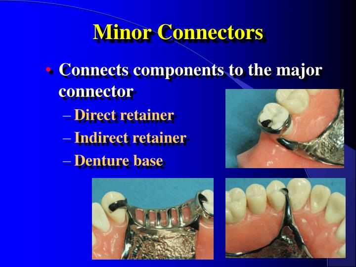 minor connectors n.