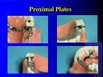 proximal plates1