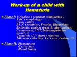 work up of a child with hematuria
