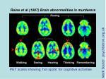 raine et al 1997 brain abnormalities in murderers2