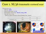 case 1 m 36 traumatic corneal scar