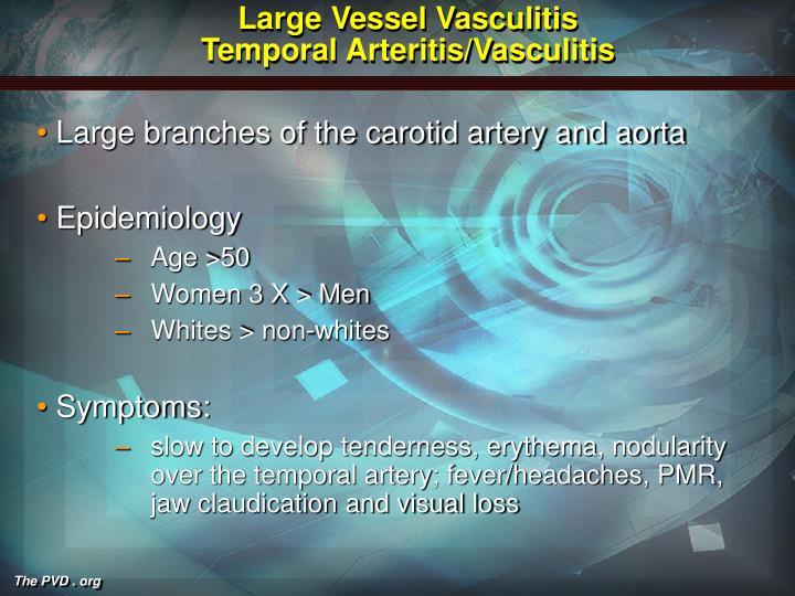 Large Vessel Vasculitis