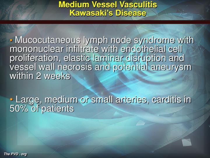 Medium Vessel Vasculitis