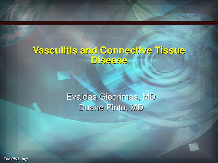 vasculitis and connective tissue disease n.