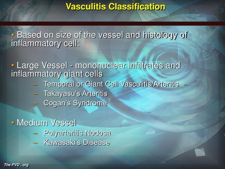 Vasculitis classification