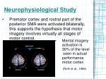 neurophysiological study