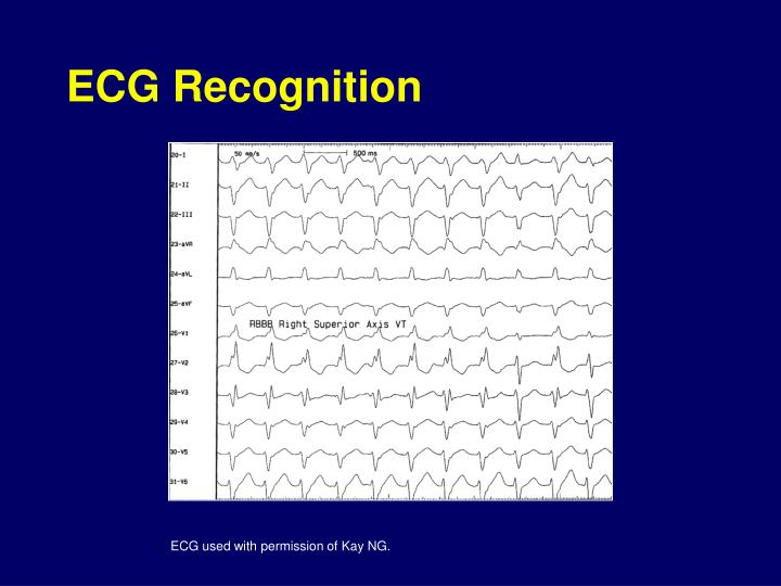 ecg recognition Ecg rhythm recognition practice and identification in a hands on manner.