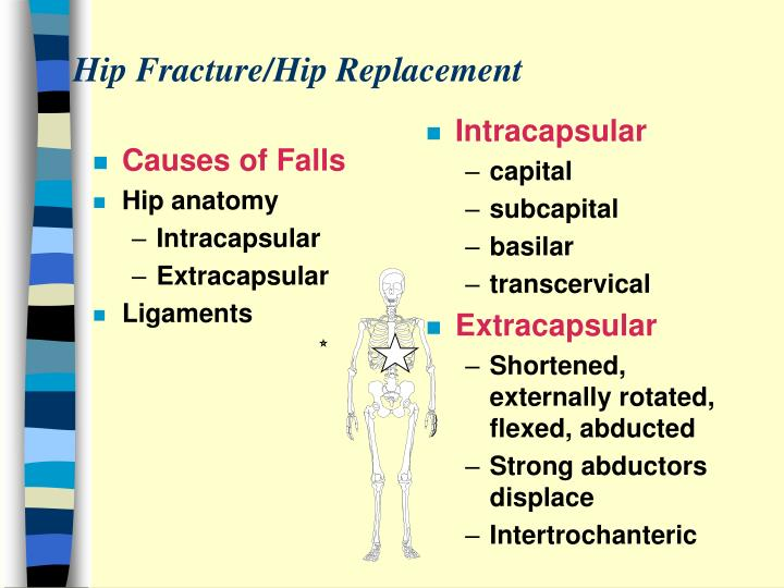 Causes of Falls
