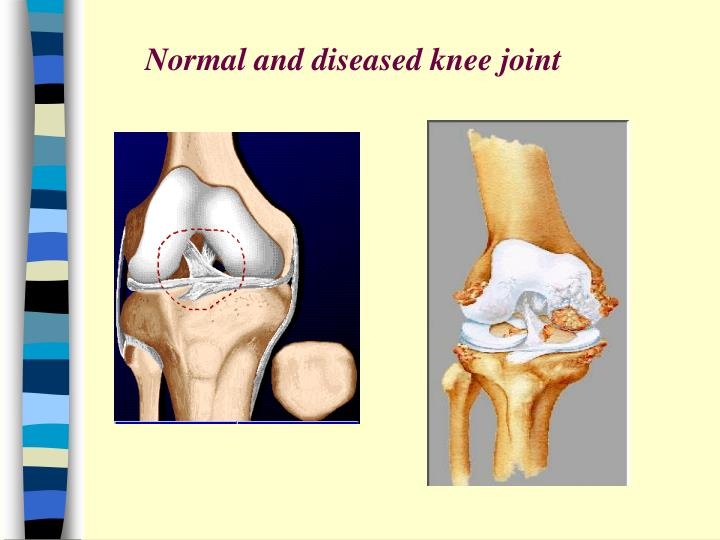 Normal and diseased knee joint