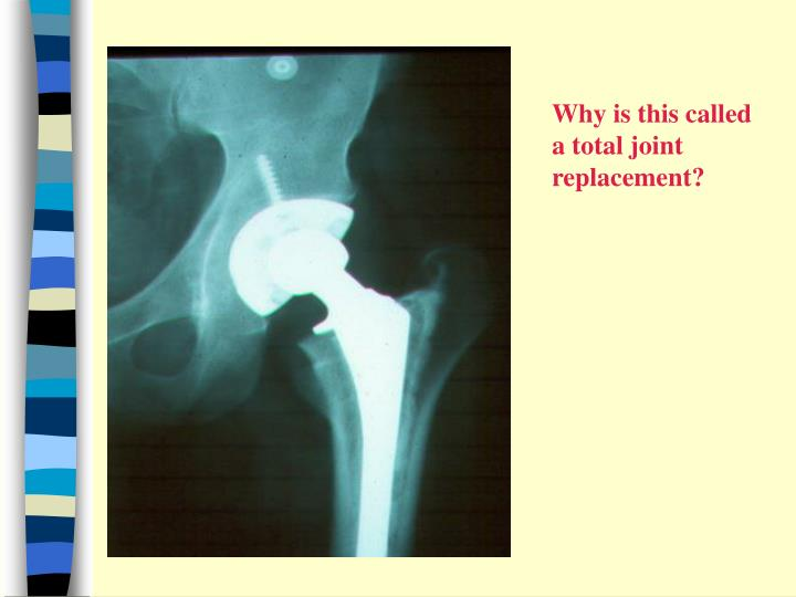 Why is this called a total joint replacement?