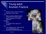 young adult avulsion fracture
